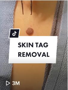 Dr Rick Skin Tag Removal